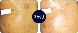 肌細胞リペア3回治療施術例