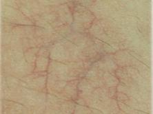 ロングパルスヤグ毛細血管拡張症