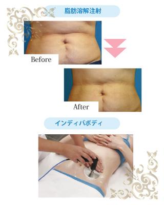 脂肪溶解注射 8本/インディバボディ40分2回